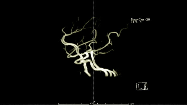 Magnetic resonance Angiography (MRA) of the brain 3D rendering image with gadolinium contrast media. Magnetic resonance Angiography (MRA) of the brain 3D rendering image with gadolinium contrast media. blood clot stock videos & royalty-free footage