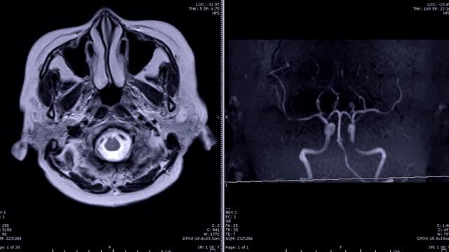 vídeos de stock e filmes b-roll de magnetic resonance angiography (mra) of the brain - enfarte