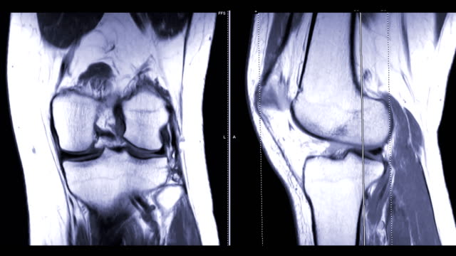 magnetic resonance imaging or mri knee  coronal and sagittal plane comparison for diagnosis sport trauma and damage of cross-shaped ligaments - radiografia video stock e b–roll