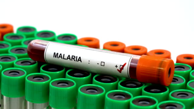 Malaria Virus - blood in a test tube Blood sample positive with Malaria Virus //4K 3840x2160 / 29.97p / Photo-JPEG / Real Time / b roll stock videos & royalty-free footage