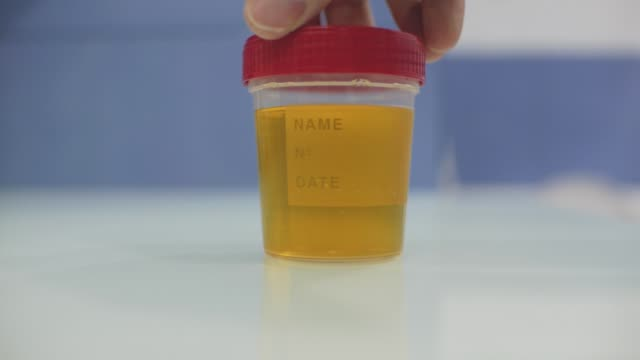 male lab technician demonstrates a urine container and mixes the contents