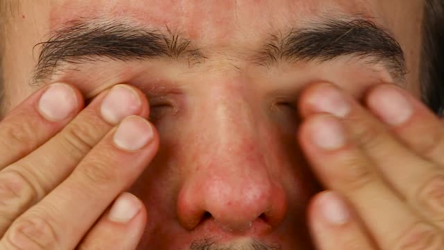 man blinks eyes with red allergic reaction and scratches , redness and peeling psoriasis on face skin, seasonal dermatology problem, close-up