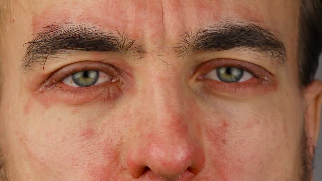 man blinks two of eyes with red allergic reaction, redness and peeling psoriasis on face skin, seasonal dermatology problem, close-up