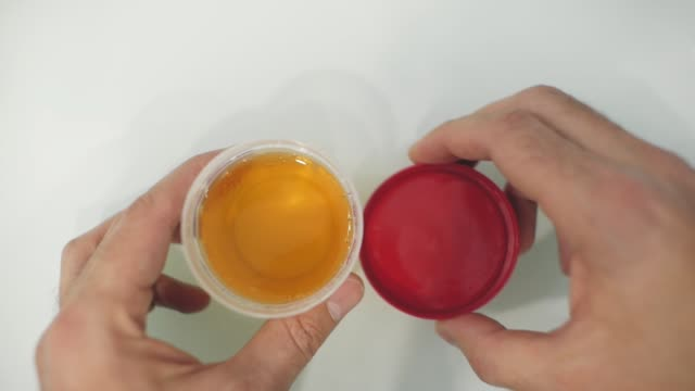 man closes the lid of the urine container with analyzes. View from above
