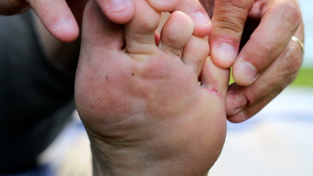 Man Discovers Itchy Athletes Foot Growth On Toes video