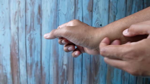 a man scratching his hand, close up - ludzka kończyna filmów i materiałów b-roll