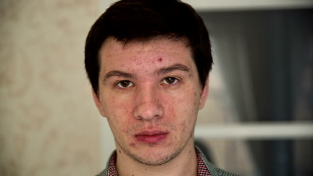 Man with Acne video