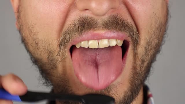 man with beard and mustache thoroughly brushes his tongue with black toothbrush, front view, massage and cleaning of plaque, closeup - fare la lingua video stock e b–roll