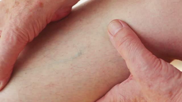 vídeos de stock e filmes b-roll de man with enlarged vein in leg - veia