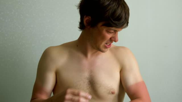 man med smärta vidrör den brända huden på händerna, solbränna utan skydd - brunbränd bildbanksvideor och videomaterial från bakom kulisserna