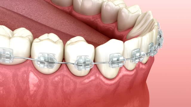 vídeos y material grabado en eventos de stock de mandíbula mandibular y llaves transparentes. animación dental 3d médicamente precisa - ortodoncista