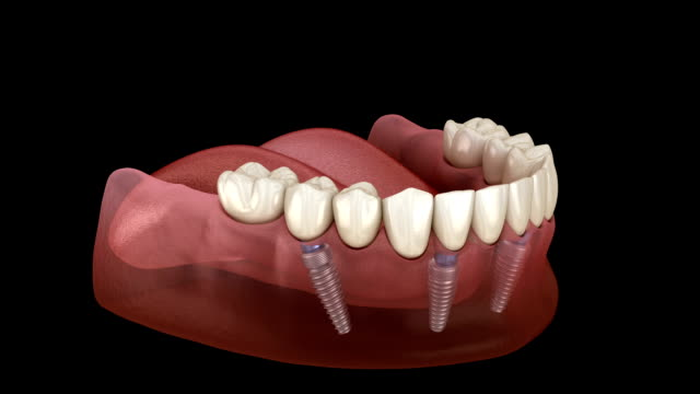 Mandibular prosthesis All on 4 system supported by implants. Medically accurate 3D animation of human teeth and dentures concept
