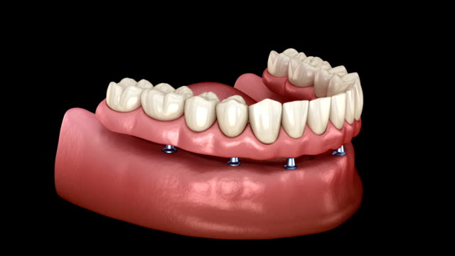 Mandibular prosthesis All on 6 system supported by implants. Medically accurate 3D animation of human teeth and dentures concept Mandibular prosthesis All on 6 system supported by implants. Medically accurate 3D animation of human teeth and dentures concept implant stock videos & royalty-free footage
