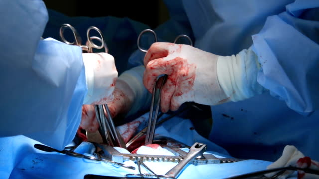 Many Surgical Instruments in Usage video
