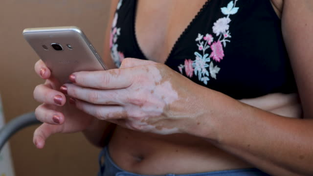 Mature woman with vitiligo sitting on balcony and using mobile phone. Woman with skin disease checking her inbox on smart phone