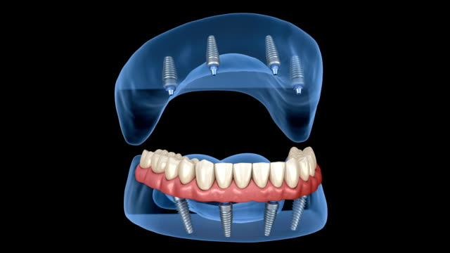 Maxillary and Mandibular prosthesis with gum All on 4 system supported by implants. Medically accurate 3D animation of human teeth and dentures Maxillary and Mandibular prosthesis with gum All on 4 system supported by implants. Medically accurate 3D animation of human teeth and dentures implant stock videos & royalty-free footage