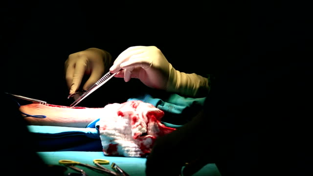 median sternotomy incision for open heart surgery video