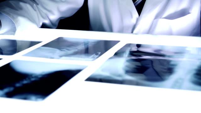 stockvideo's en b-roll-footage met medic doctor hospital dark room x ray examine bones cancer - alleen één mid volwassen man