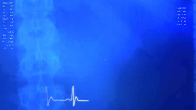 Medical Background 2: Spine Left, Blue video