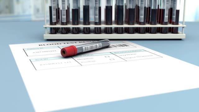 Medical blood test is negative for virus detection video