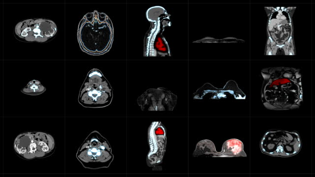 Medical diagnostics MRI scans for clinical analysis CT or CAT scanner images, visual representations of interior of a body on black background, more options in my portfolio oncology stock videos & royalty-free footage