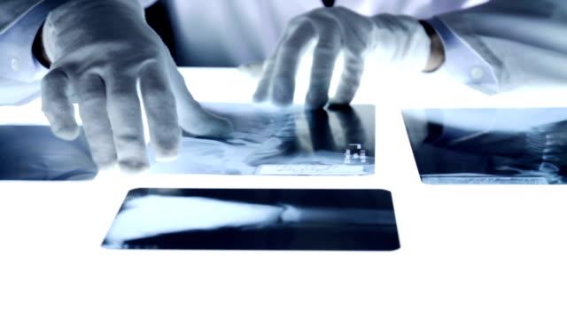 stockvideo's en b-roll-footage met medical doctor contemplating looking x ray spine - alleen één mid volwassen man