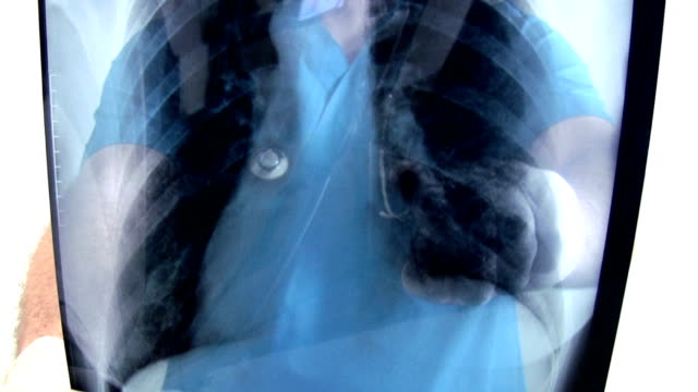 dottore in medicina - torace animale video stock e b–roll