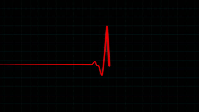 stockvideo's en b-roll-footage met medische ecg ekg monitor met rode lijn - hartmonitor