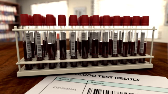 Medical form with virus positive blood analysis video