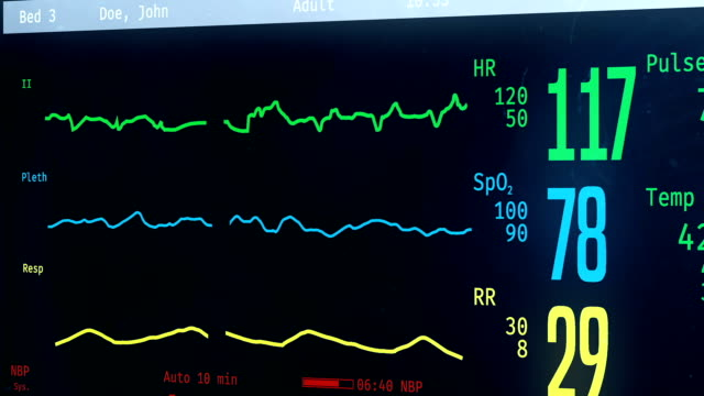 medical icu bedside monitor with patient's vital signs, person passing away - morto video stock e b–roll