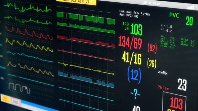 ICU medical monitor, patient's condition getting worse, irregular heartbeat video