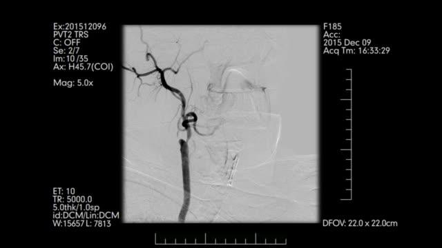 vídeos de stock e filmes b-roll de medical monitor with brain vessels angiogram. - coágulo