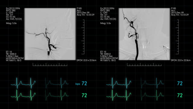 vídeos de stock e filmes b-roll de medical monitor with neuro-vascular angiogram - arteriograma