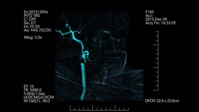 vídeos de stock e filmes b-roll de medical monitoring of brain blood vessels. cerebral angiography. - coágulo
