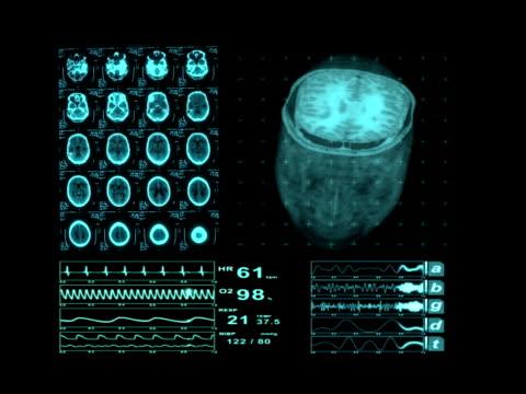 Medical MRI Neurological XRay Scan Brain video