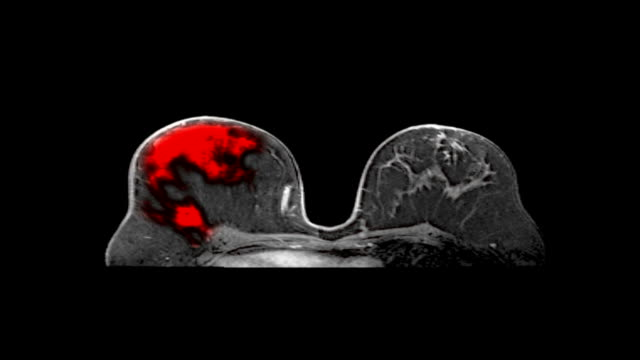 Medical MRI Scan Screen, Breast Cancer Diagnosis Radiology examinations images of woman breast on medical display with additional medical data. Black background for easy keying, more options in my portfolio mammogram stock videos & royalty-free footage