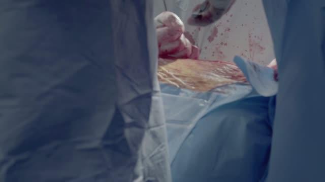 medical personnel of the operating unit perform aorto-coronary bypass surgery - serce człowieka filmów i materiałów b-roll