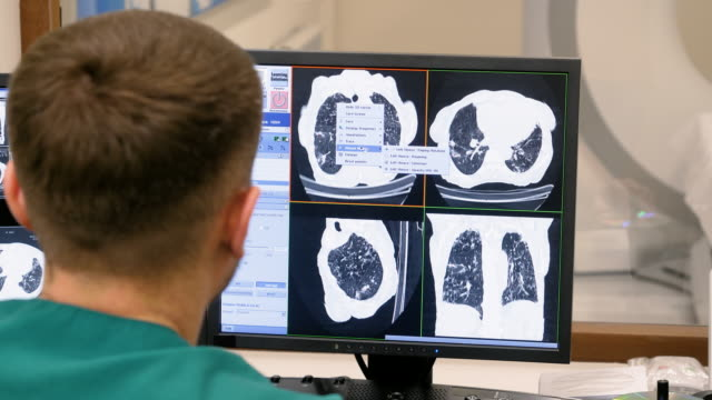 Medical professional doctor looking at patient scans on computer screens in modern clinic. 4K