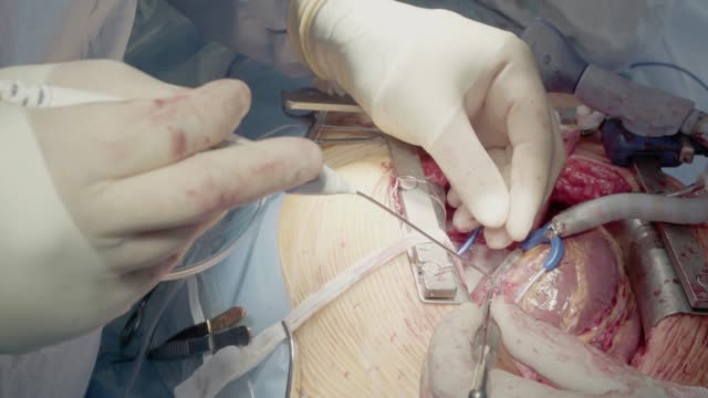medical staff of the operating unit do heart surgery. shunt installation - cuore umano video stock e b–roll