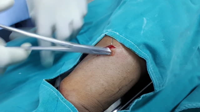 Medical Stitches video