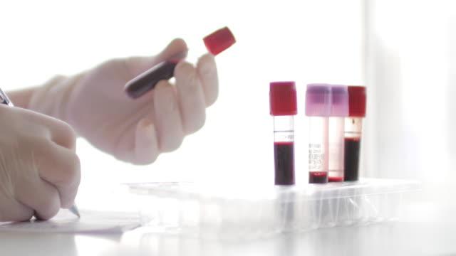 medicinsk tekniker notera och kontrollera blod i rött provrör vid mikrobiologiska laboratoriet, 4k (uhd) - test tube bildbanksvideor och videomaterial från bakom kulisserna
