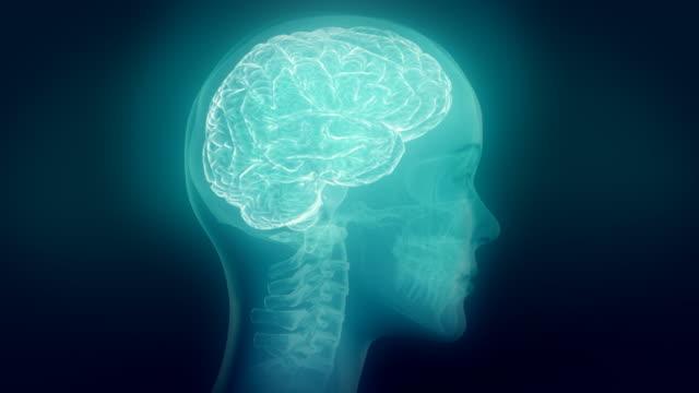 Medizinischen Hintergrund video. Animation, Kopf Röntgen. Gehirn hervorgehoben. Schleife. – Video