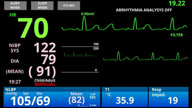 Medical vital signs monitor, cardio sensor patient health condition diagnostic Medical vital signs monitor, cardio sensor patient health condition diagnostic human heart stock videos & royalty-free footage