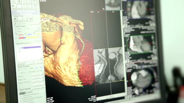 vídeos y material grabado en eventos de stock de medicamento. cardíaca tomografía computarizada (ct). - escán médico