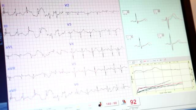 vídeos de stock e filmes b-roll de medicamento. aparecem no monitor de ecg. - seio coronário
