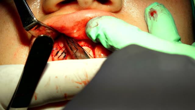 metal dikiş i̇ğne diş kist kaldırma curjik operasyondan yara kapatır - sütür eklem stok videoları ve detay görüntü çekimi