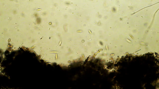 Micro organisms Micro organisms high scale magnification stock videos & royalty-free footage