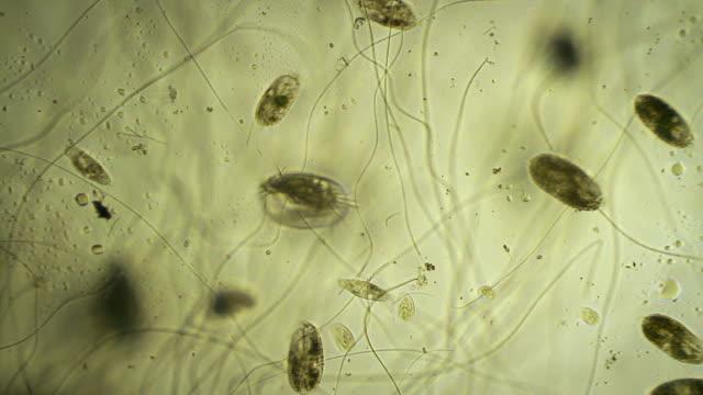 vídeos y material grabado en eventos de stock de los microbios - bacteria