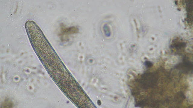 Microbes Microorganisms - paramecium magnification stock videos & royalty-free footage