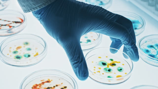Microbiology Laboratory: Petri Dishes with Various Bacteria Samples, Pipette Drops Liquid Solution. Concept of Pharmaceutical Research of Antibiotics, Curing Disease Fighting Epidemics. Close-up Macro